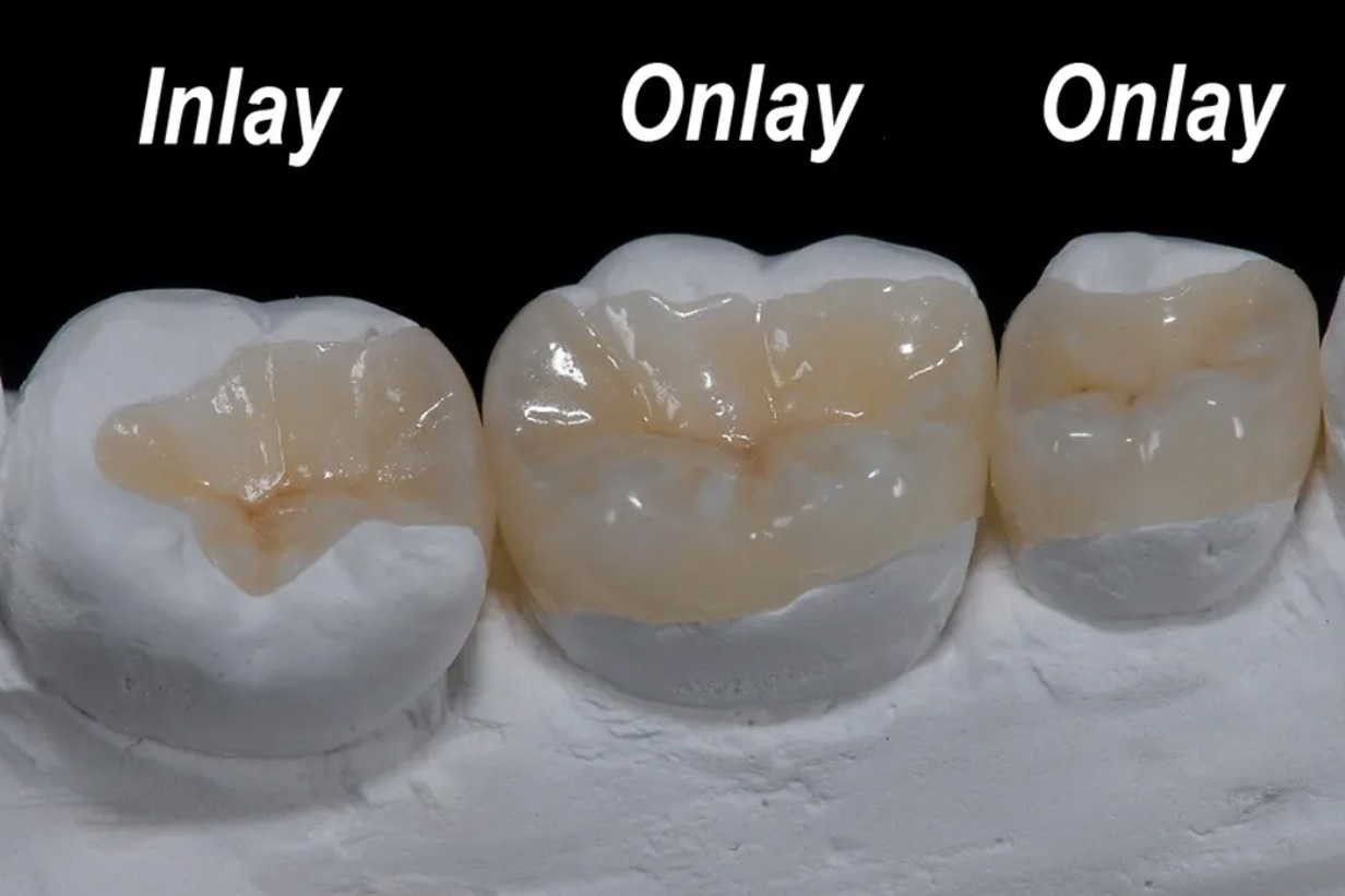 Inlays, onlays and crowns procedures and installations in Etobicoke