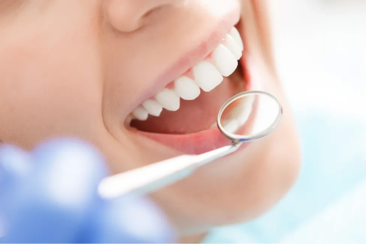 Sedation & Laughing Gas Dentistry in Etobicoke