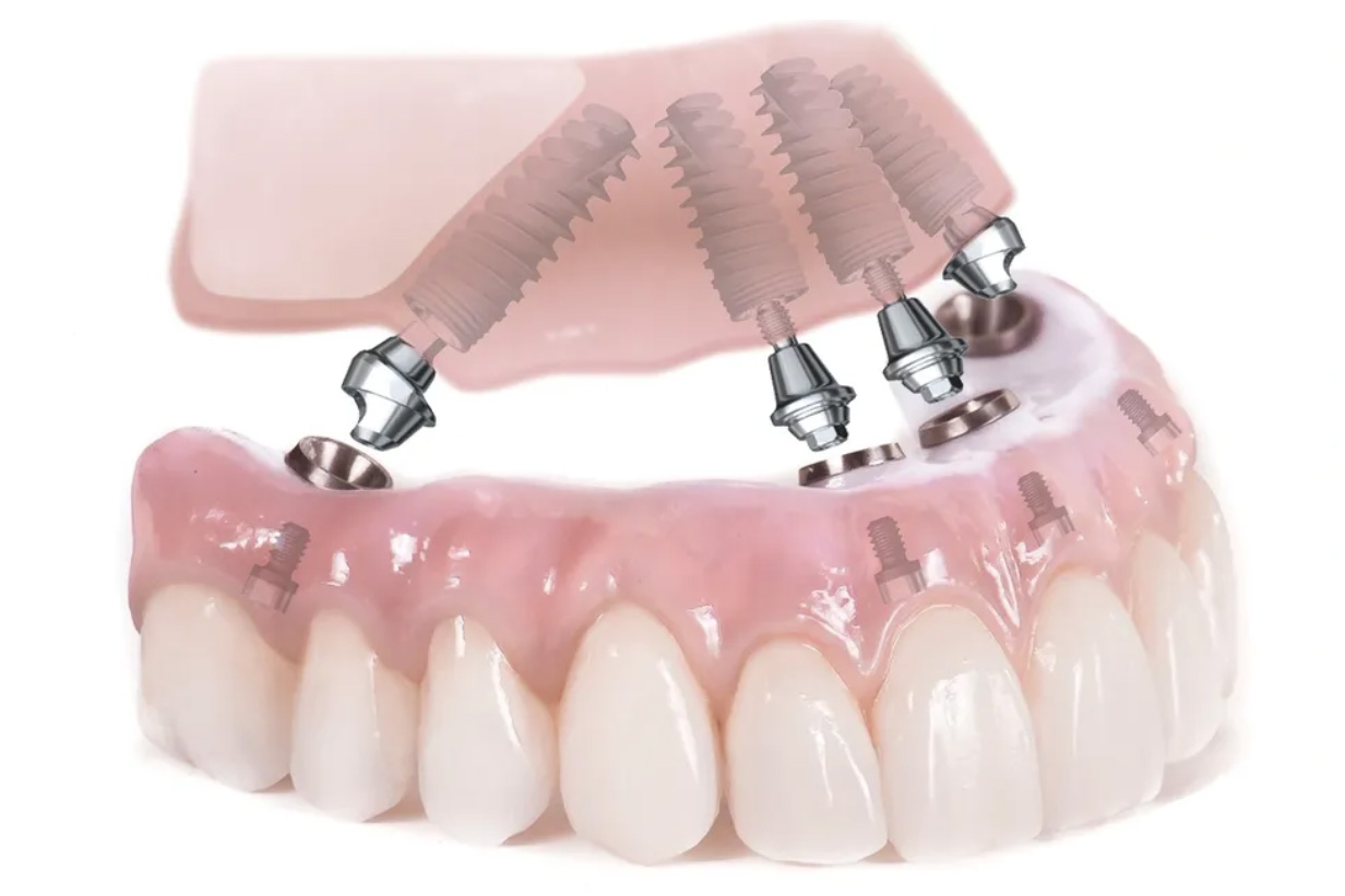Four implants placed for denture stability