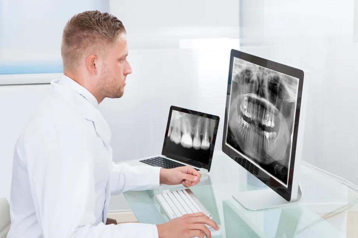 Dental X-rays in Etobicoke