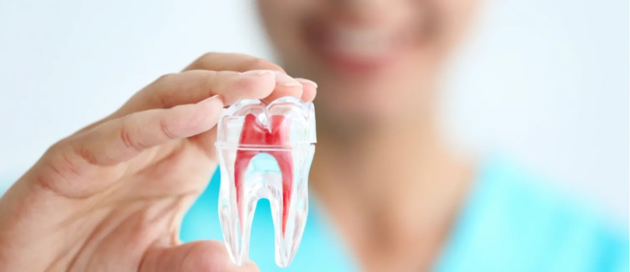 Root Canal Treatments in Etobicoke