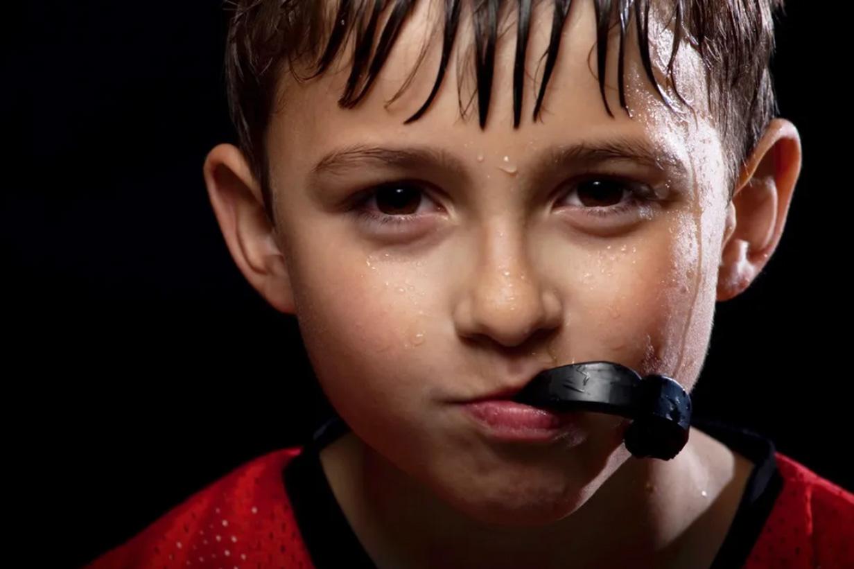 Sports Mouth Guards Etobicoke