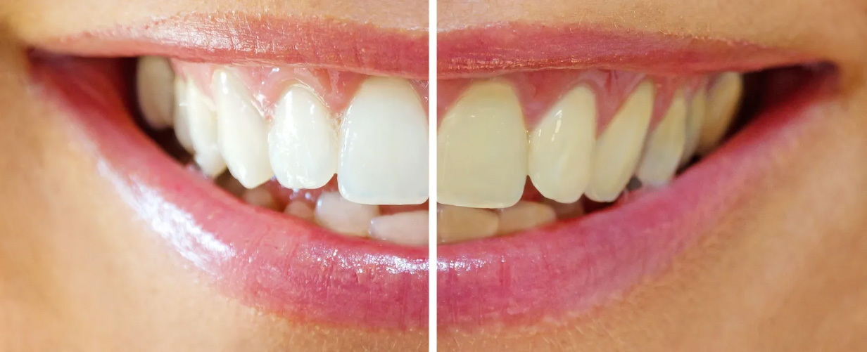 Teeth whitening in Etobicoke